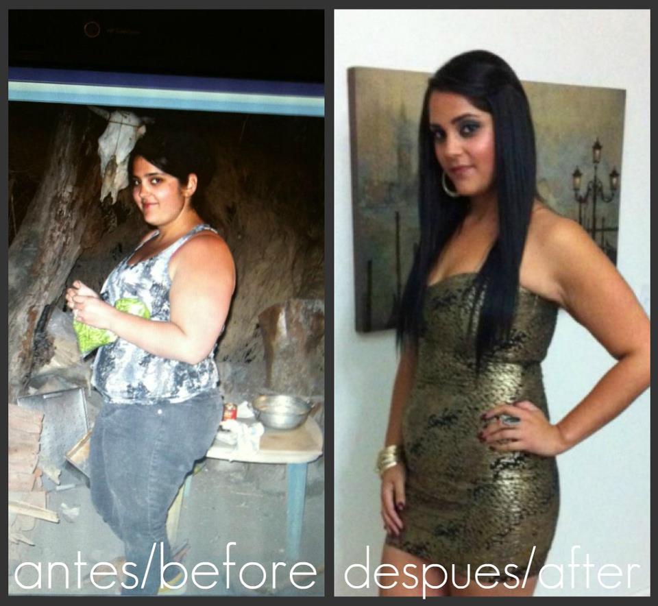 Weight Loss Surgery Before and After Photos